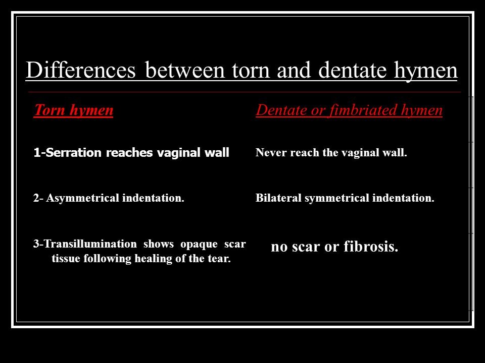 Differences between torn and dentate hymen