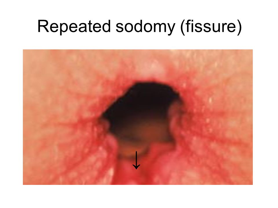 Repeated sodomy (fissure)