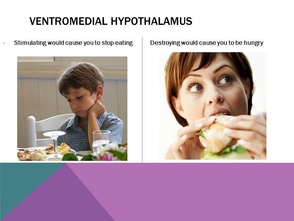 Ventromedial hypothalamus