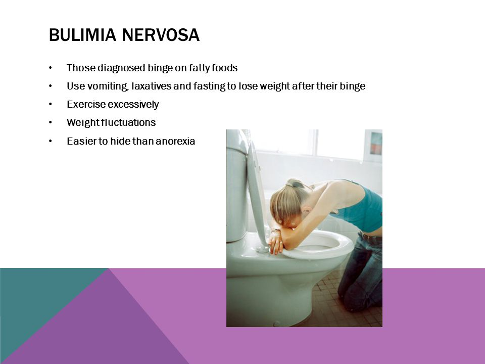 Bulimia nervosa Those diagnosed binge on fatty foods
