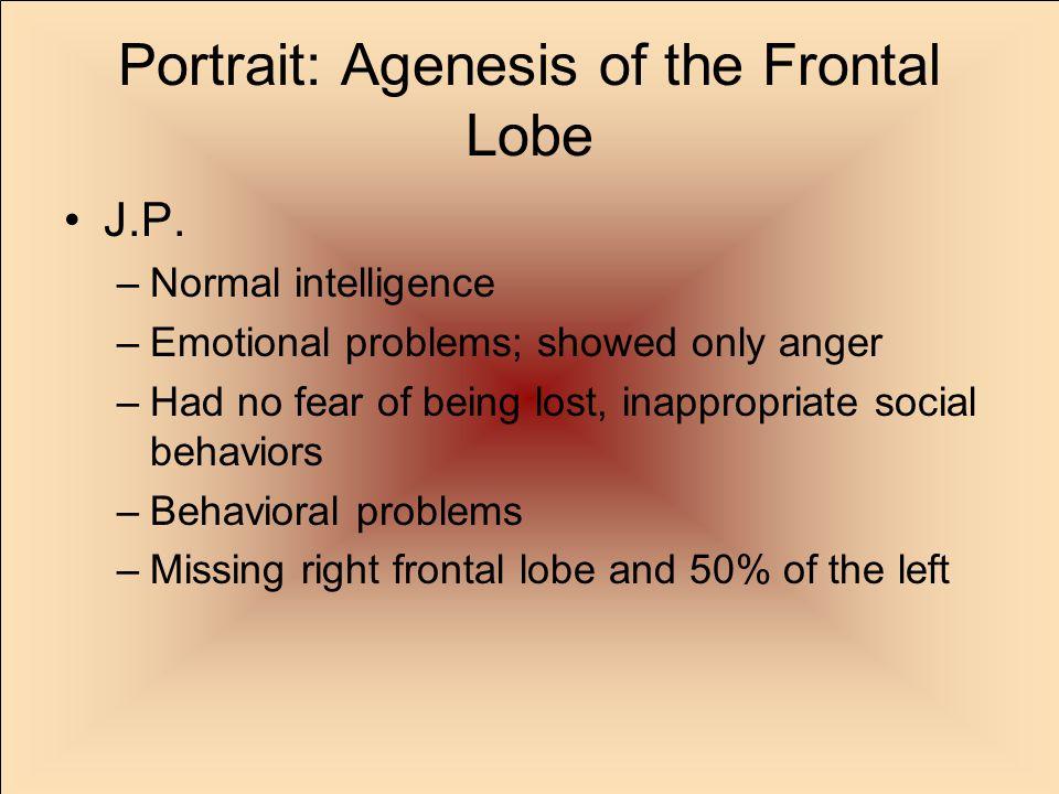 Portrait: Agenesis of the Frontal Lobe