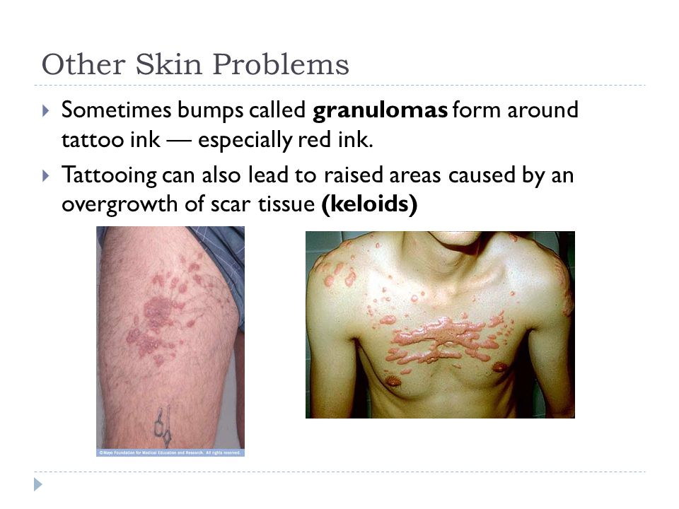 Other Skin Problems Sometimes bumps called granulomas form around tattoo ink — especially red ink.