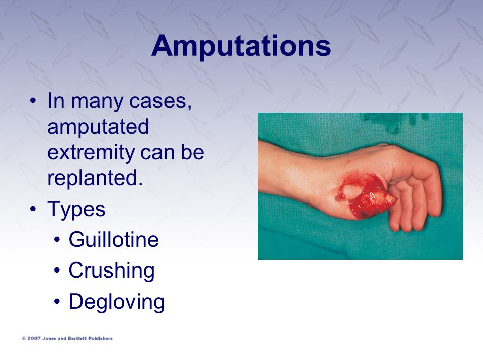 Amputations In many cases, amputated extremity can be replanted. Types