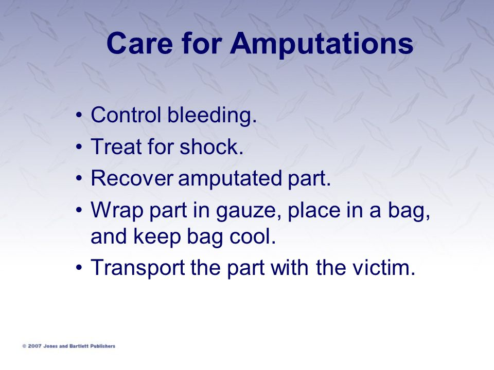 Care for Amputations Control bleeding. Treat for shock.