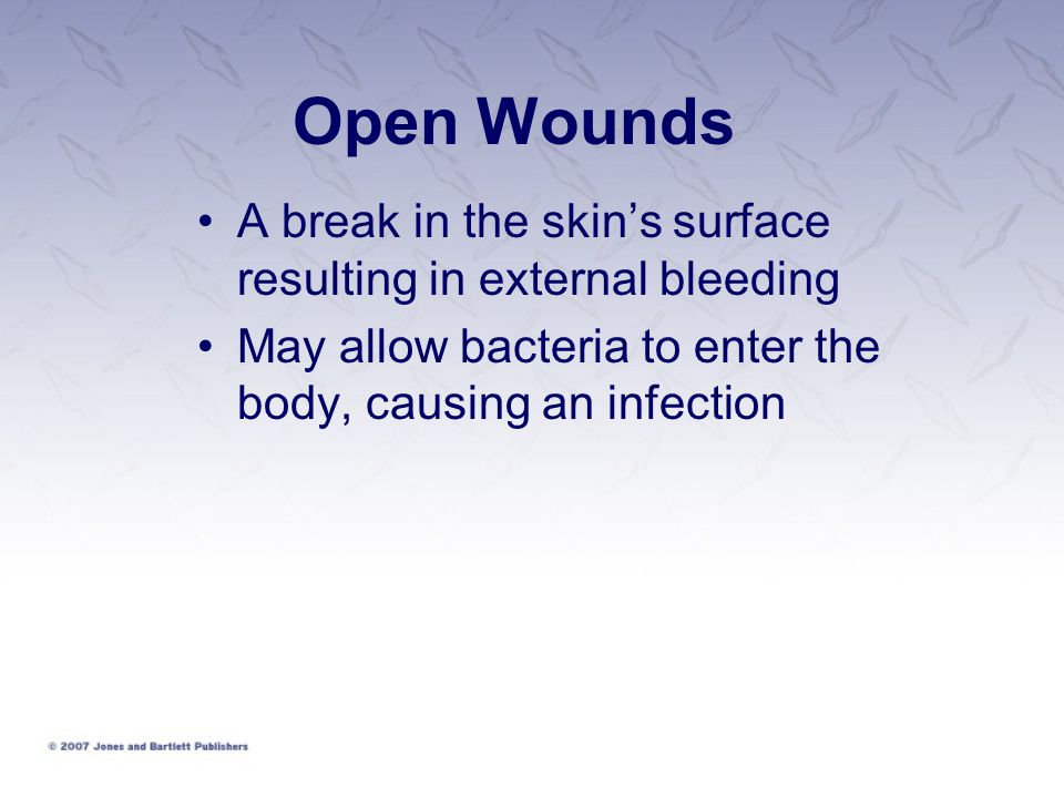 Open Wounds A break in the skin's surface resulting in external bleeding.