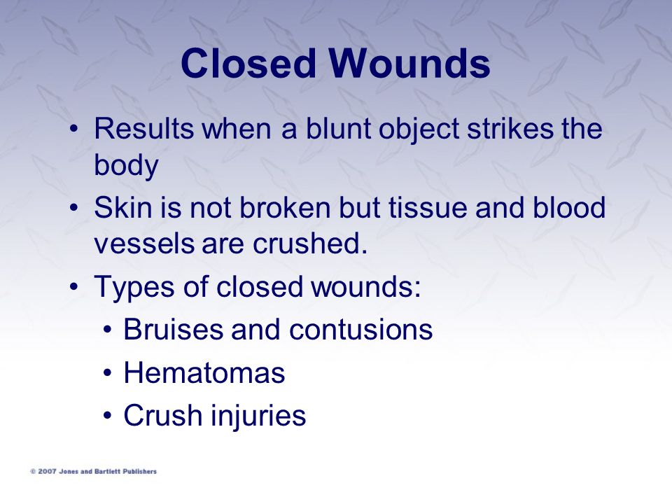 Closed Wounds Results when a blunt object strikes the body
