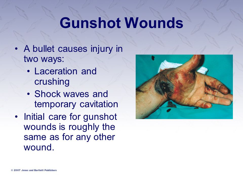 Gunshot Wounds A bullet causes injury in two ways: