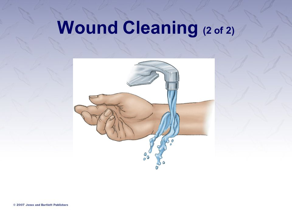 Wound Cleaning (2 of 2)