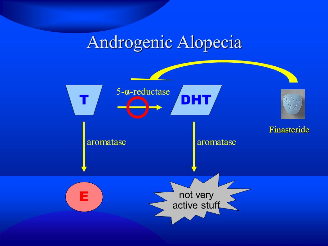 Androgenic Alopecia T DHT E 5-α-reductase aromatase aromatase not very