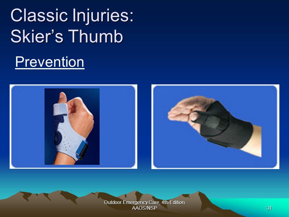 Classic Injuries: Skier's Thumb