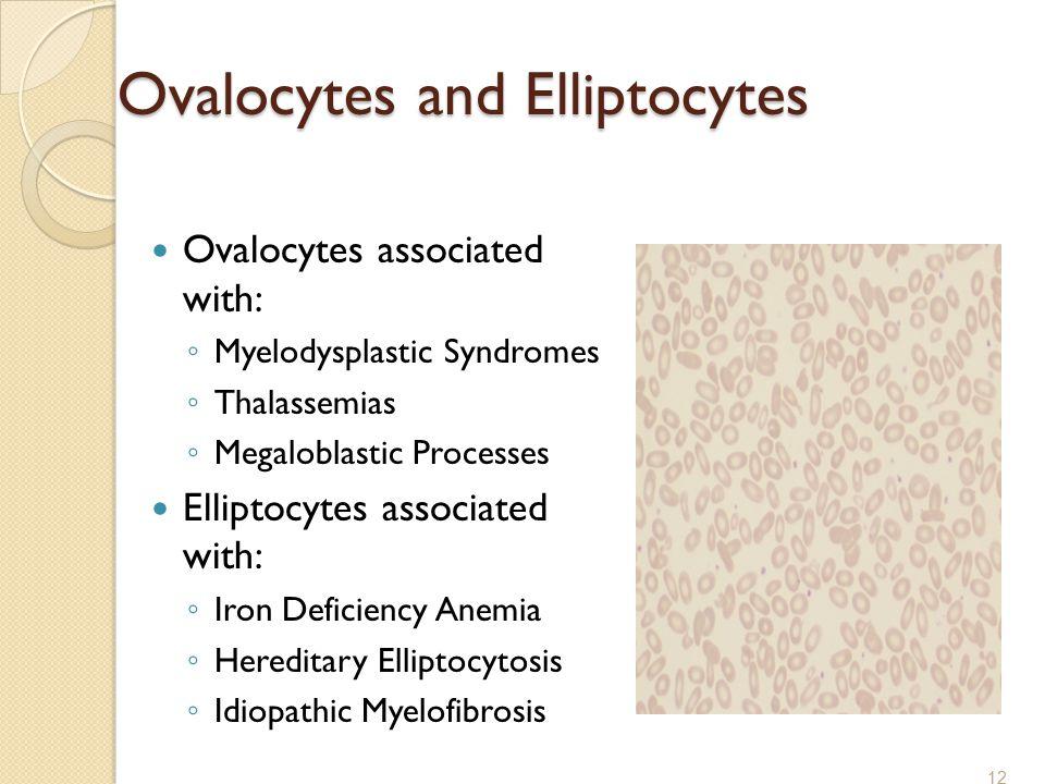 Ovalocytes and Elliptocytes