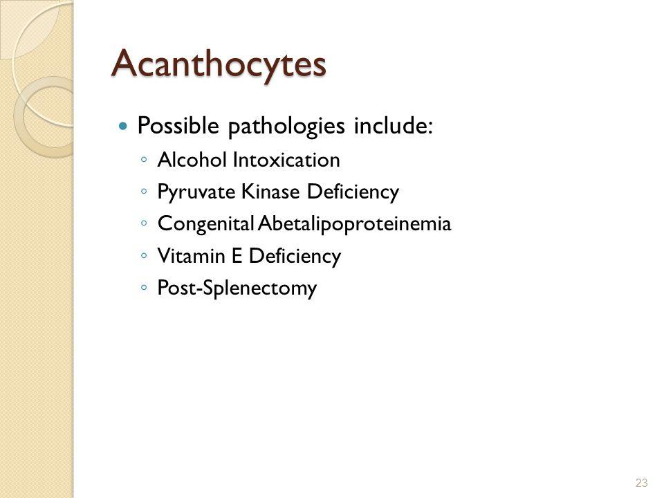 Acanthocytes Possible pathologies include: Alcohol Intoxication
