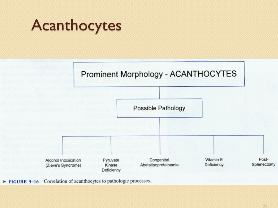 Acanthocytes