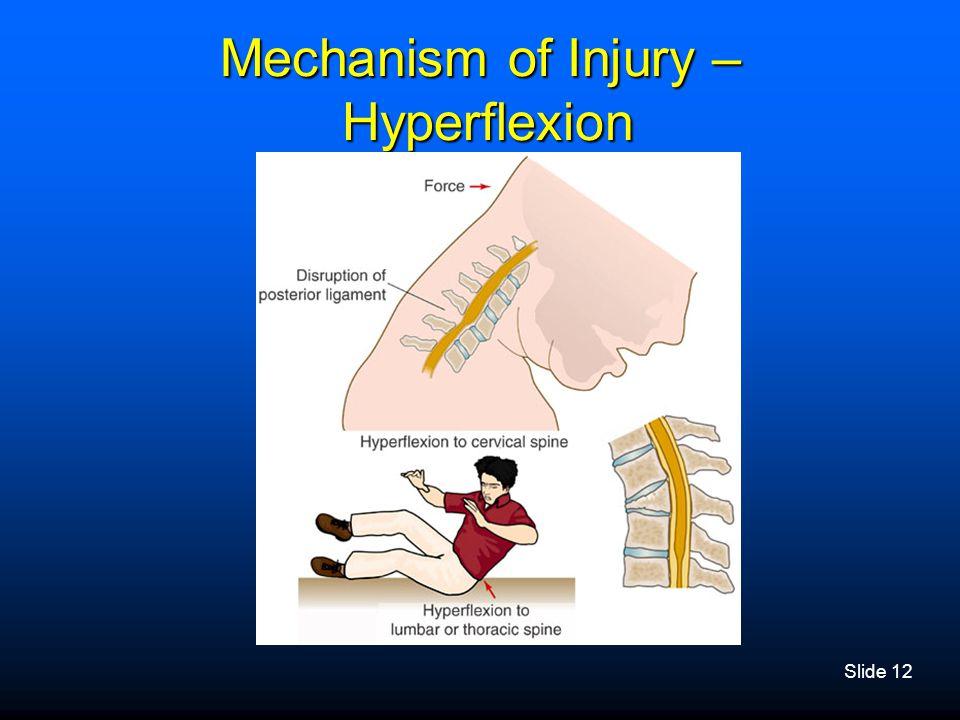 Mechanism of Injury – Hyperflexion