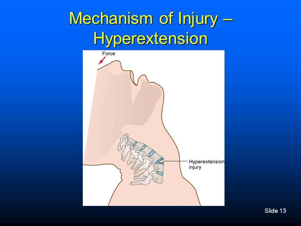 Mechanism of Injury – Hyperextension