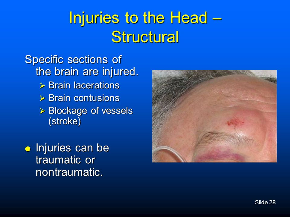 Injuries to the Head – Structural