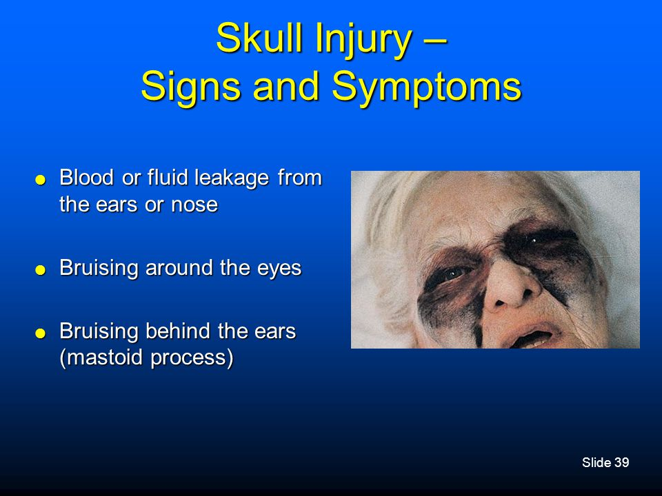 Skull Injury – Signs and Symptoms