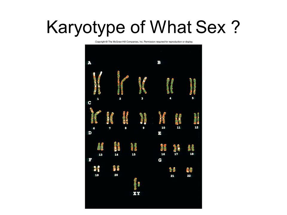 Karyotype of What Sex