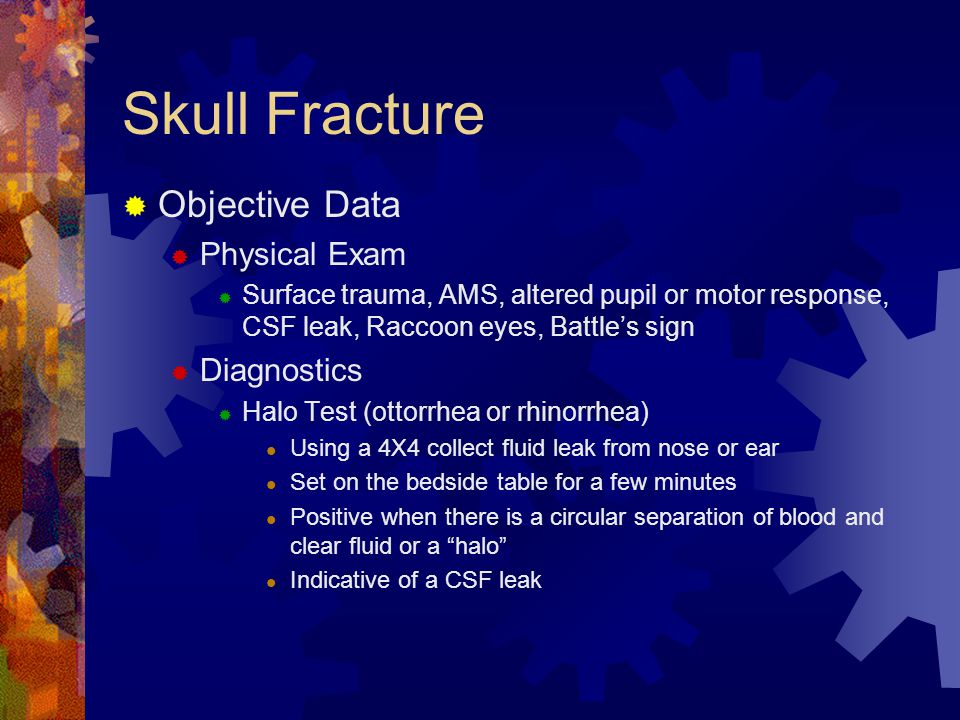 Skull Fracture Objective Data Physical Exam Diagnostics