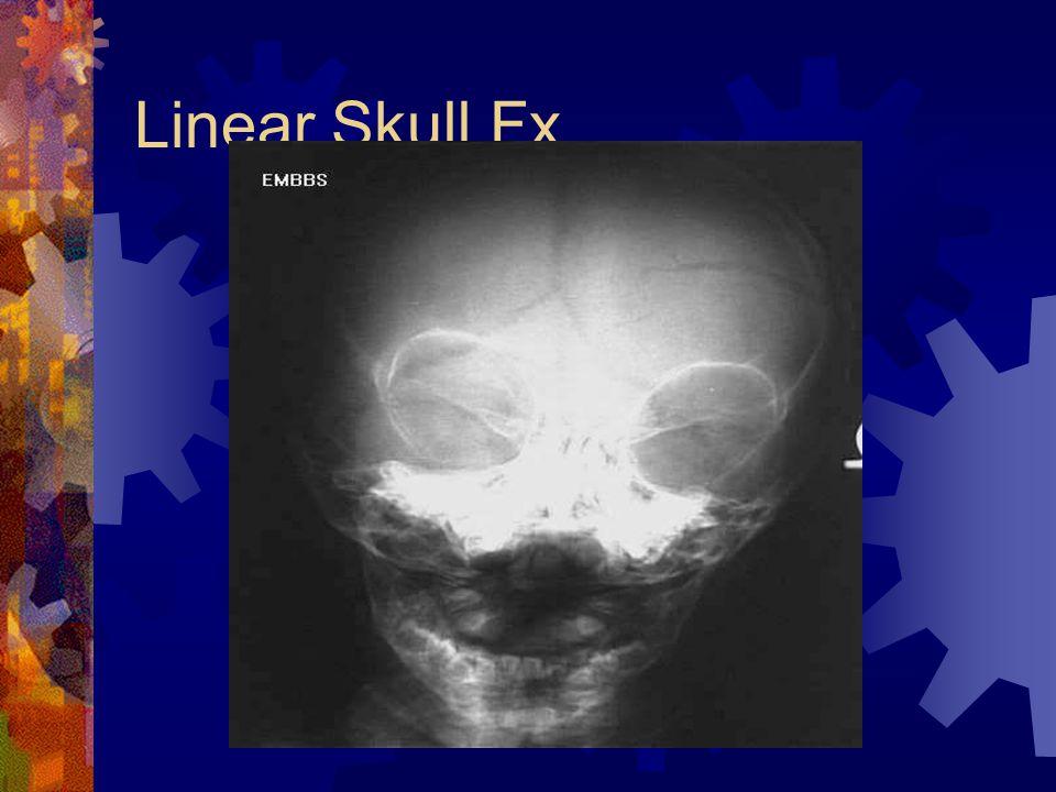 Linear Skull Fx