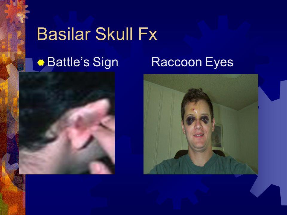 Basilar Skull Fx Battle's Sign Raccoon Eyes
