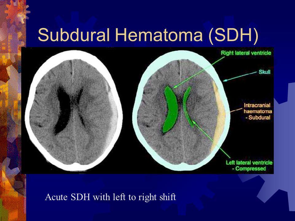 Subdural Hematoma (SDH)