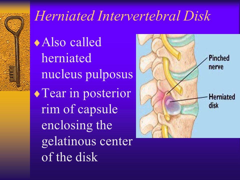 Herniated Intervertebral Disk