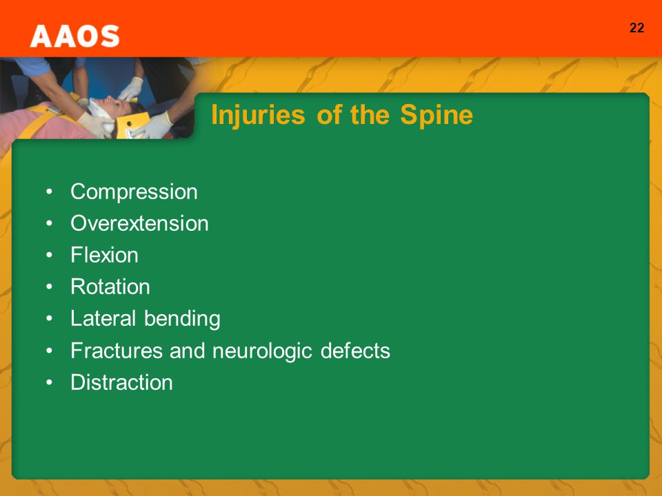 Injuries of the Spine Compression Overextension Flexion Rotation