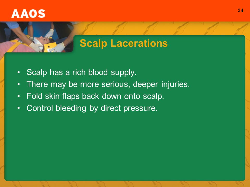 Scalp Lacerations Scalp has a rich blood supply.
