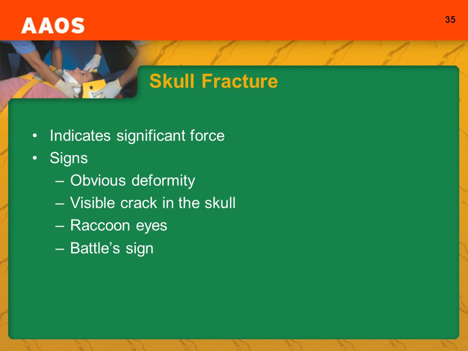 Skull Fracture Indicates significant force Signs Obvious deformity