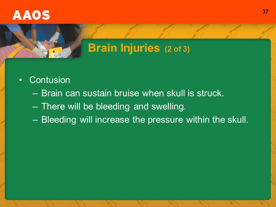 Brain Injuries (2 of 3) Contusion