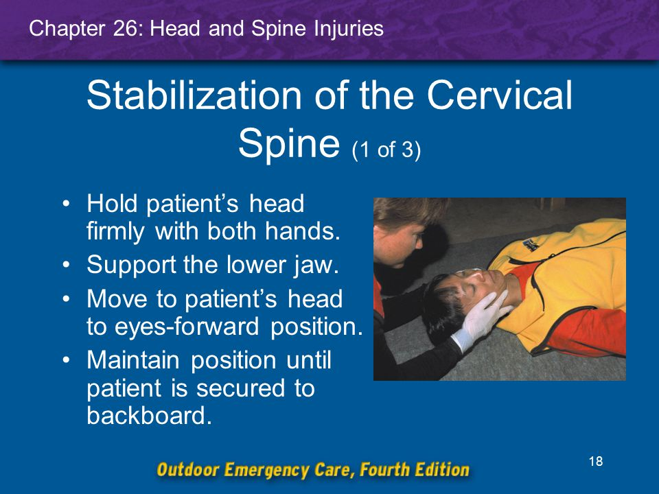 Stabilization of the Cervical Spine (1 of 3)