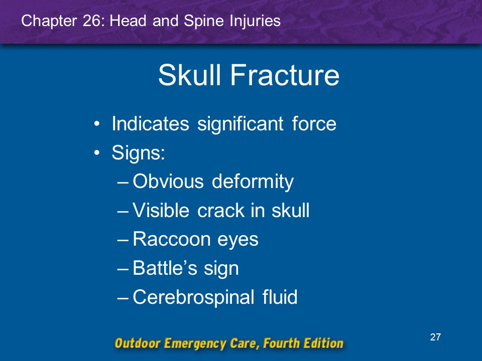 Skull Fracture Indicates significant force Signs: Obvious deformity