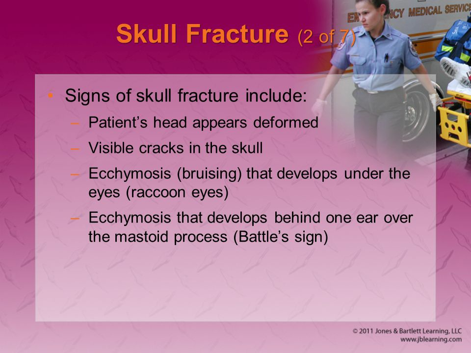 Skull Fracture (2 of 7) Signs of skull fracture include: