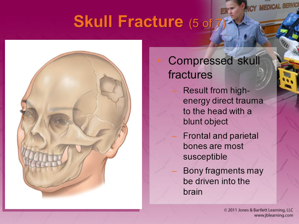 Skull Fracture (5 of 7) Compressed skull fractures
