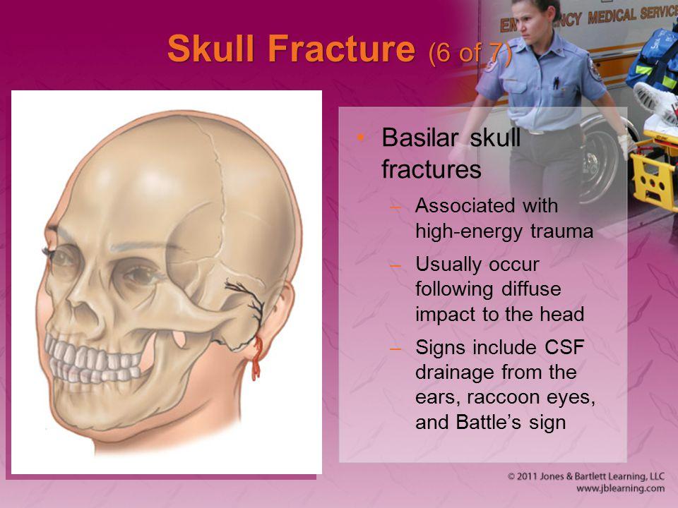 Skull Fracture (6 of 7) Basilar skull fractures