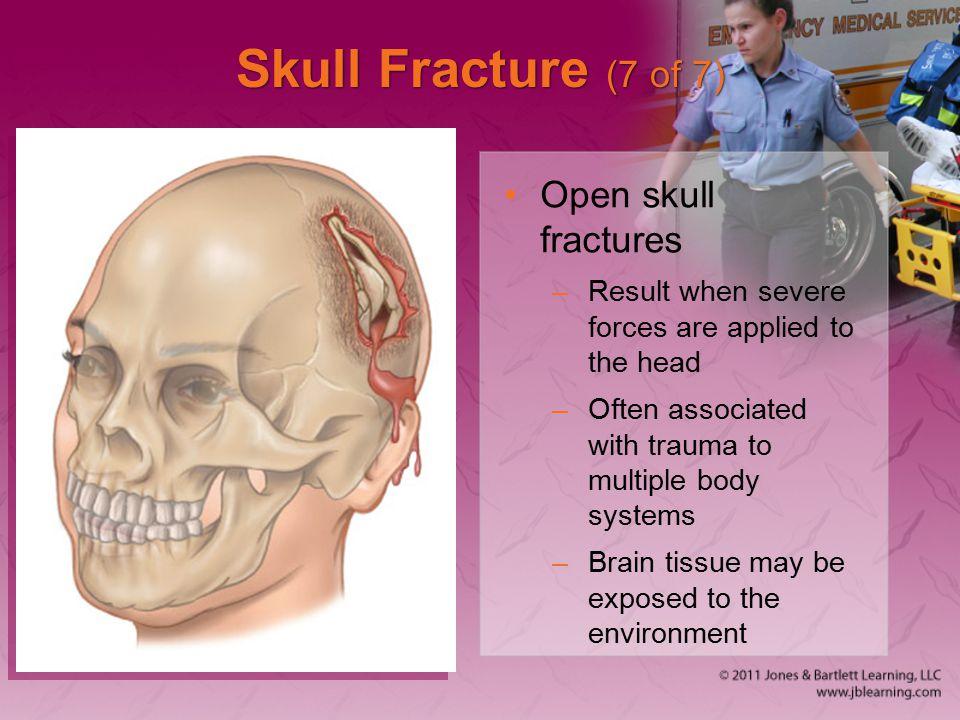 Skull Fracture (7 of 7) Open skull fractures