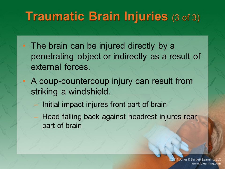 Traumatic Brain Injuries (3 of 3)
