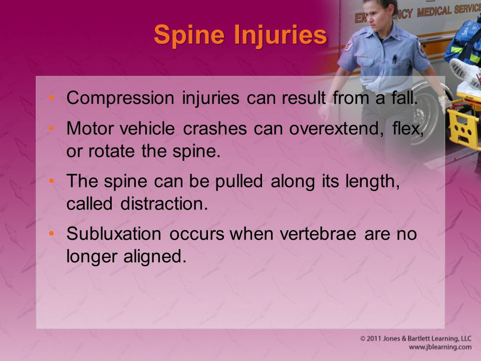 Spine Injuries Compression injuries can result from a fall.
