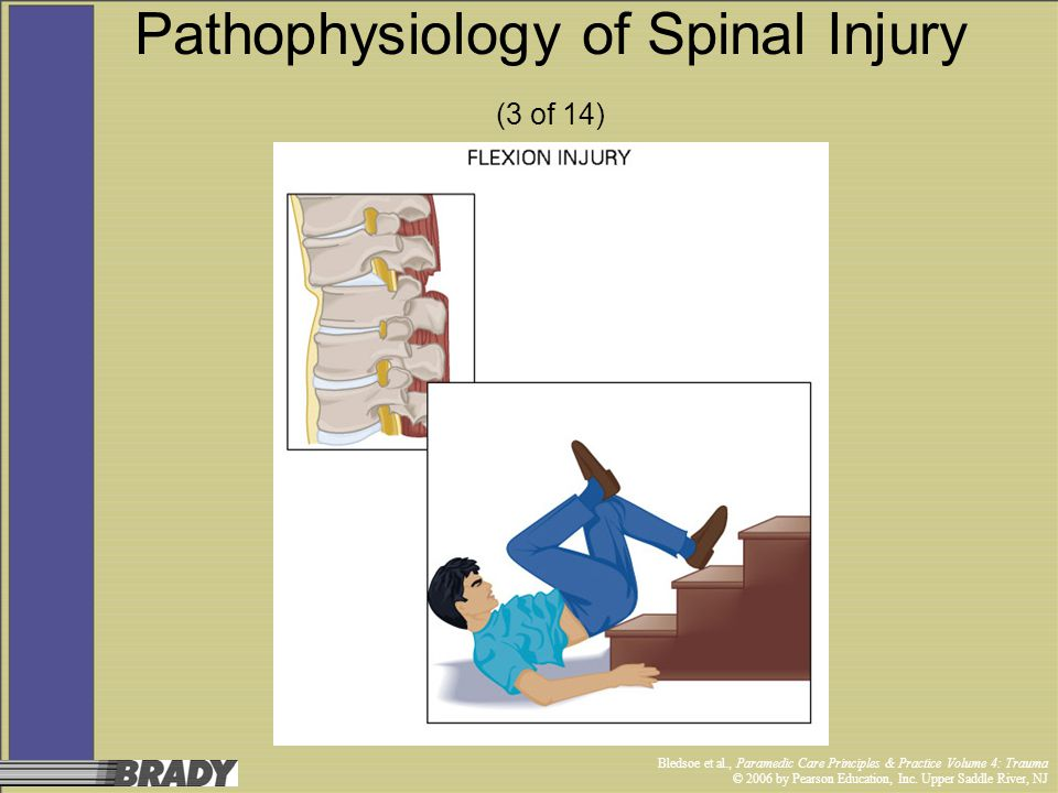 Pathophysiology of Spinal Injury (3 of 14)