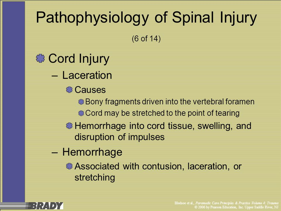 Pathophysiology of Spinal Injury (6 of 14)