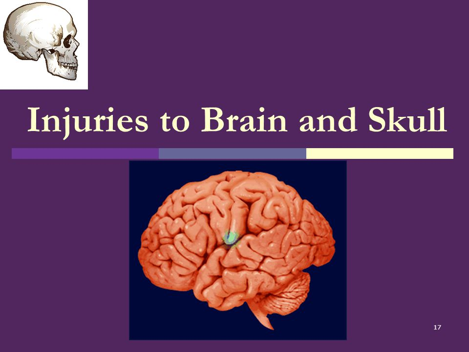 Injuries to Brain and Skull