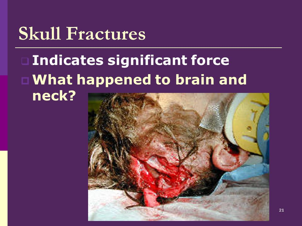 Skull Fractures Indicates significant force