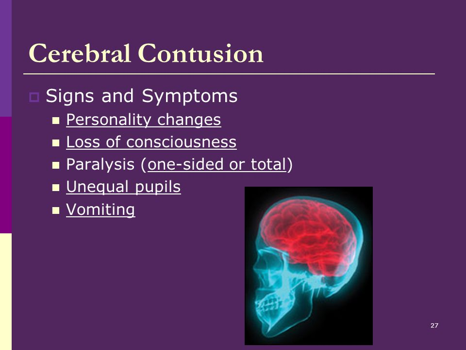 Cerebral Contusion Signs and Symptoms Personality changes