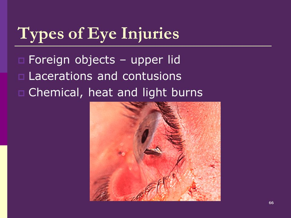 Types of Eye Injuries Foreign objects – upper lid