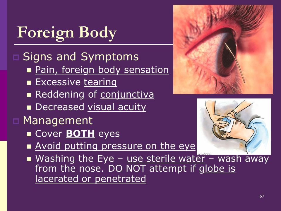 Foreign Body Signs and Symptoms Management
