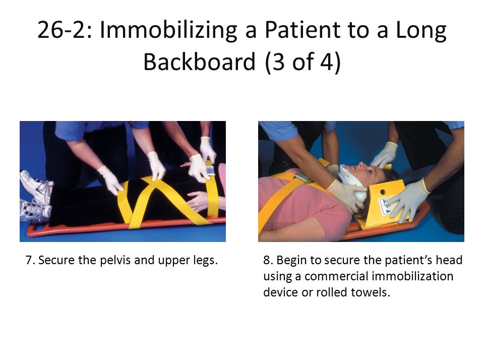 26-2: Immobilizing a Patient to a Long Backboard (3 of 4)
