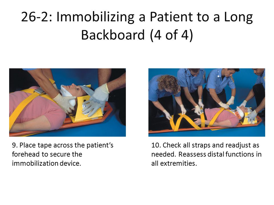 26-2: Immobilizing a Patient to a Long Backboard (4 of 4)