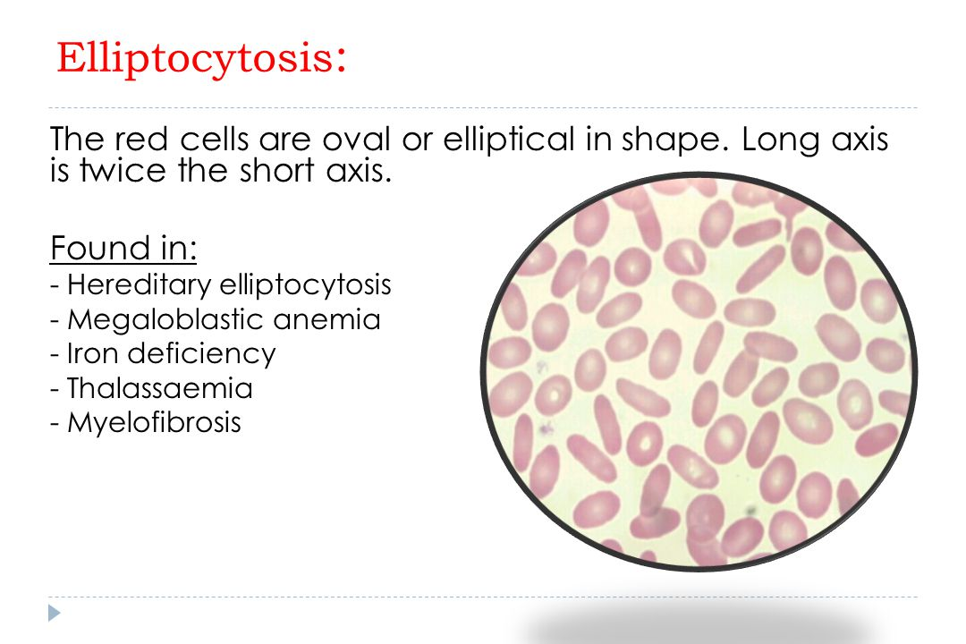 Elliptocytosis: The red cells are oval or elliptical in shape. Long axis is twice the short axis.