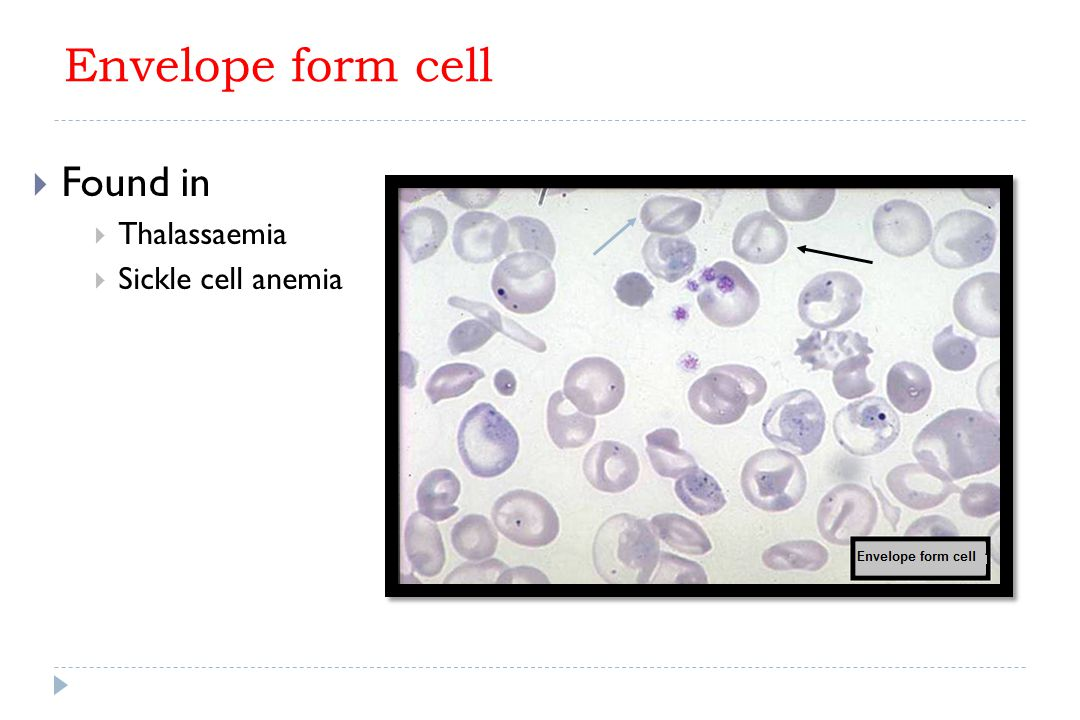 Envelope form cell Found in Thalassaemia Sickle cell anemia